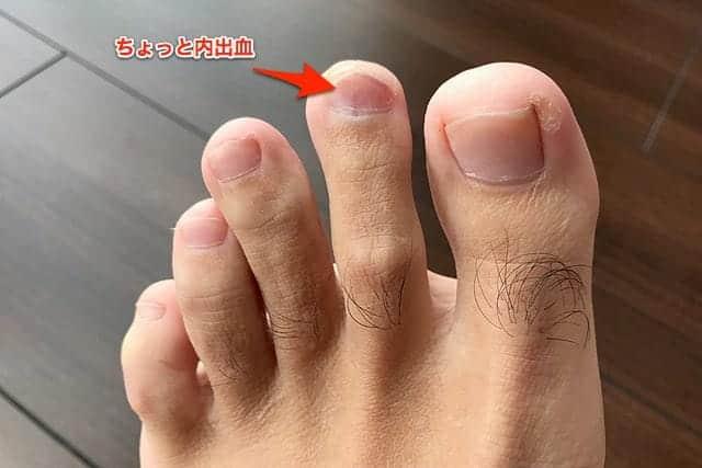 左足の人差し指 ちょっと内出血