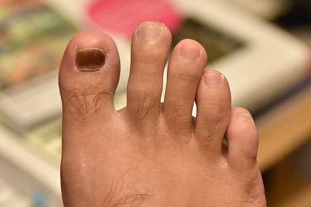 右足の親指 全体的に爪が黒くなった