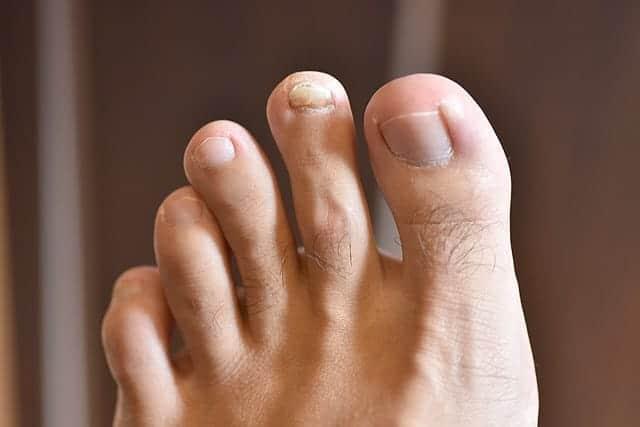 爪が盛り上がった左足の人差し指
