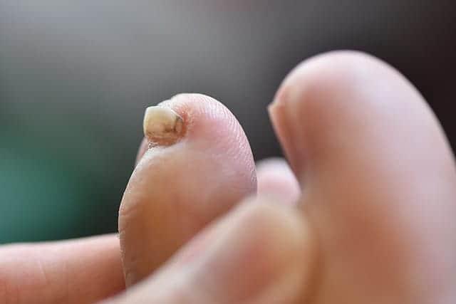 横から見た爪の盛り上がり