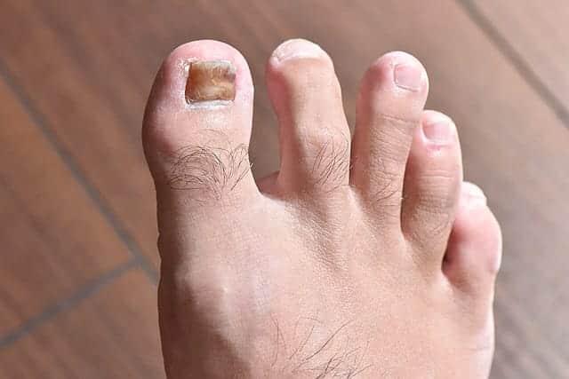 特に変化はない右足の親指