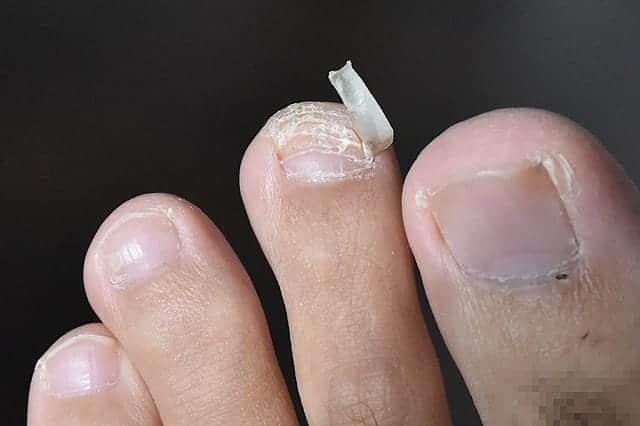 古い爪が取れた指の爪