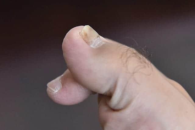 新しい爪が生えてきてる親指