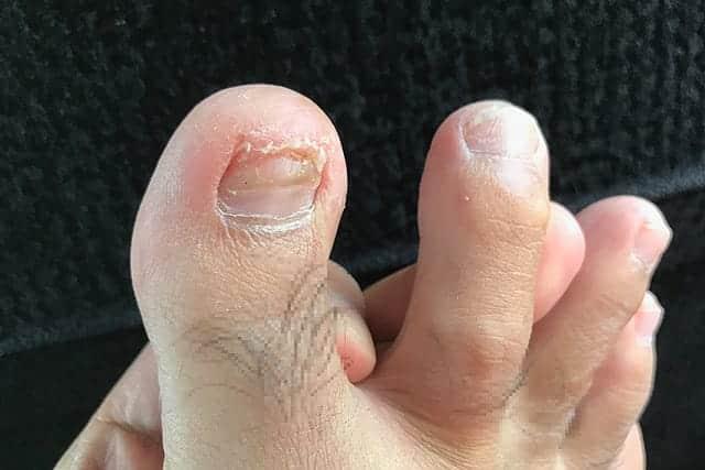親指の古い爪が取れた