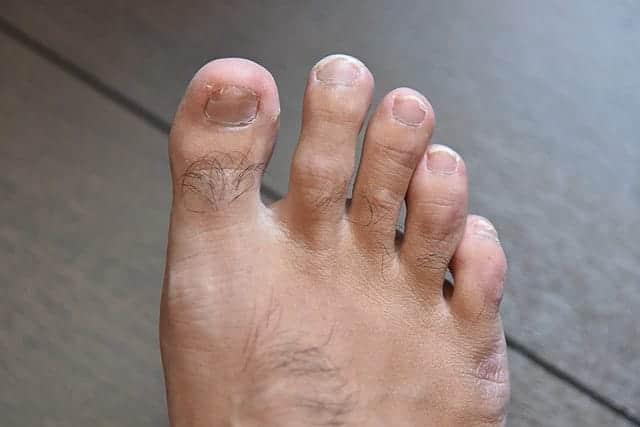 右足の爪も少しずつ生えてきてます