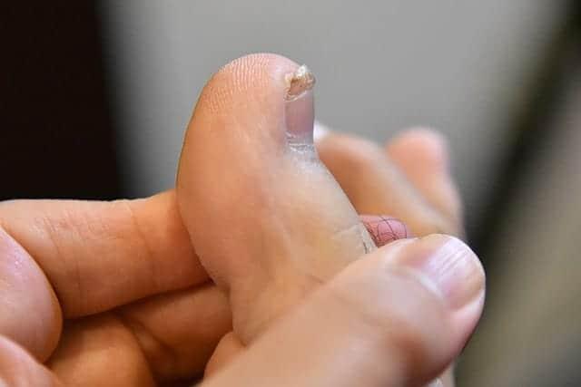 いびつな爪も残り3mm程度