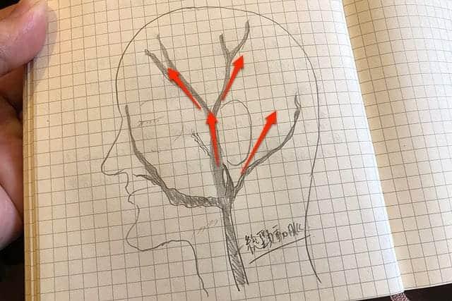 頭部の血管の流れを知る