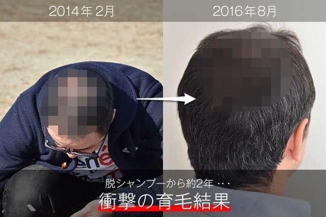 脱シャンプーのその後…。髪は本当に増えたのか!? 衝撃の結果と僕が毎日使っている育毛グッズはこれ!