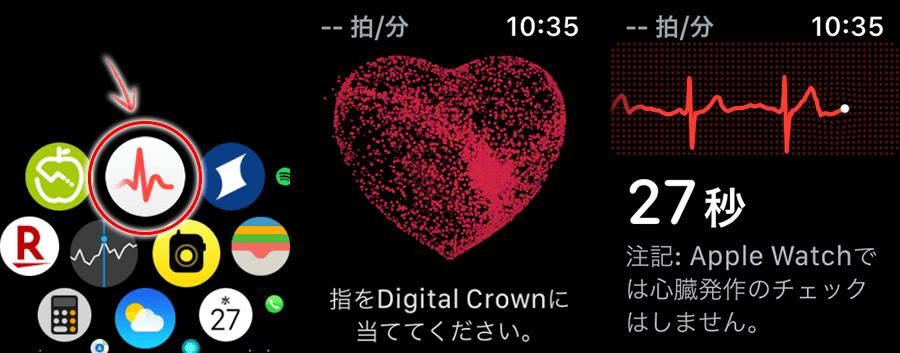 Apple Watchの心電図アプリで計測します