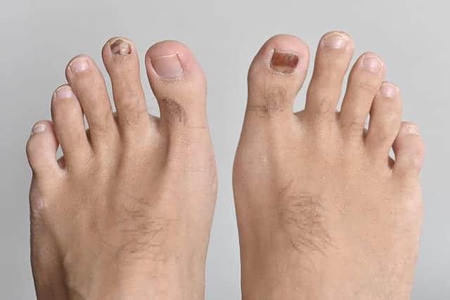 真っ黒く内出血した足の親指つめの再生までの流れ ランニングによる