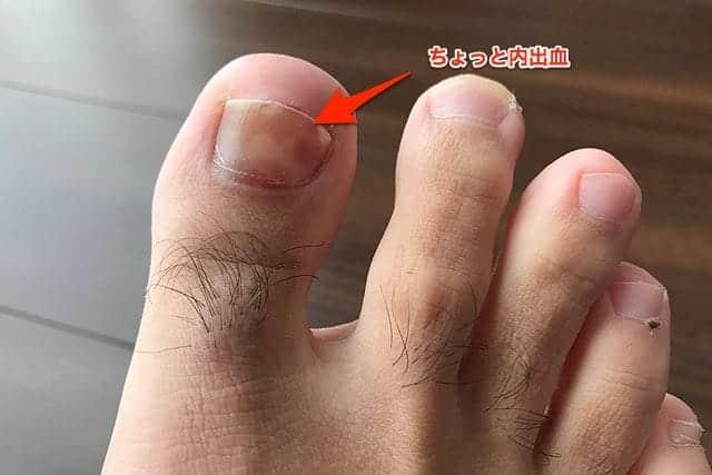 右足の親指 ちょっと変色