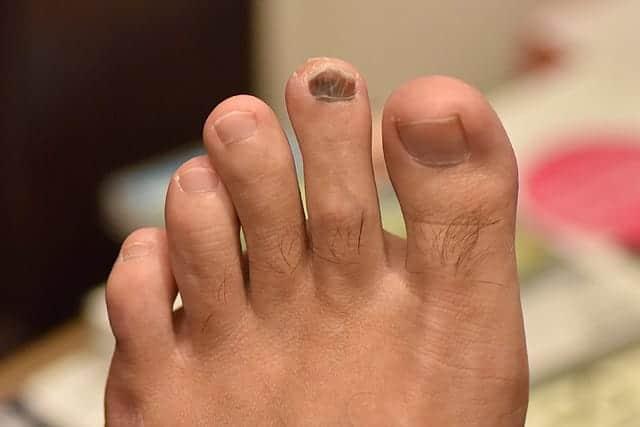 左足の人差し指 全体的に爪が黒くなった