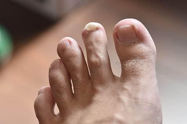 左足の人差し指 さらに爪が盛り上がる