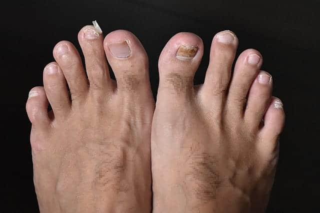 左足の人差し指 古い爪が取れる