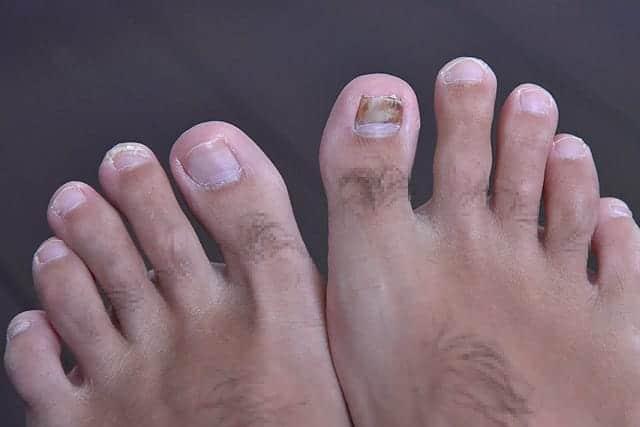 親指の下からも新しい爪が出てくる