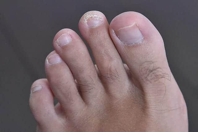 左足の人差し指はだんだんキレイに