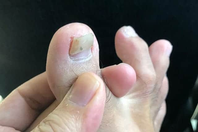 親指の爪も取れそうになった