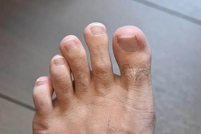 ようやく不揃いだった左足の人差し指の爪が元どおりになりました。