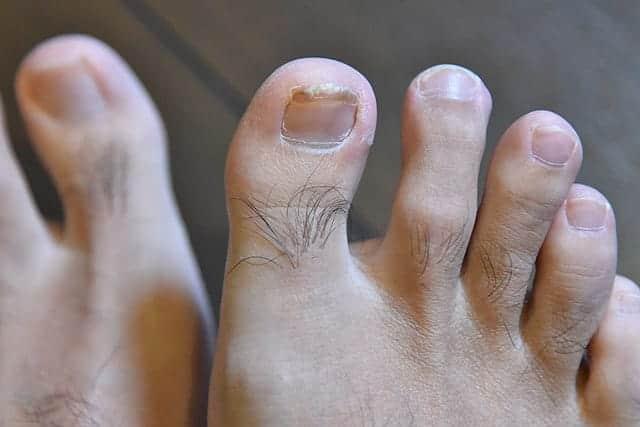 親指の爪も順調に回復