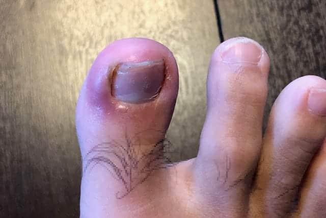 ひょう疽ではれた親指
