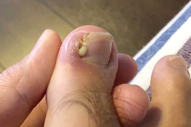 ひょう疽 膿が出た写真