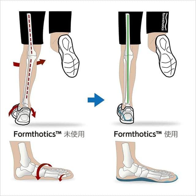 フォームソティックスは、足医療の最先端、ニュージランドが産んだ矯正インソール