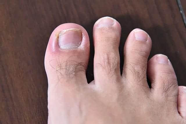 足の親指の爪に化膿菌が入って膿むひょう疽には 市販薬のテラマイシン