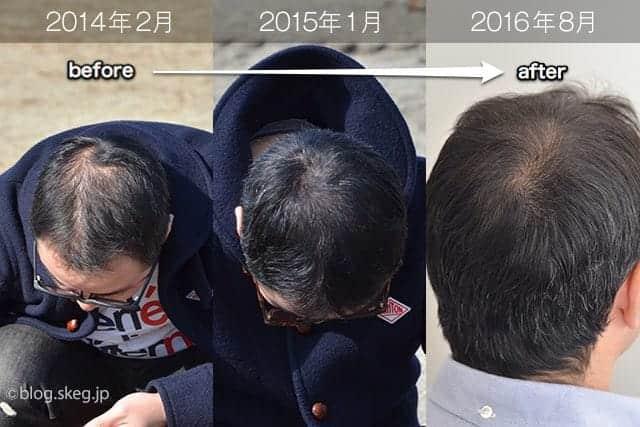 脱シャンプー後、独自の育毛方法でここまで髪の毛が増えてきた!