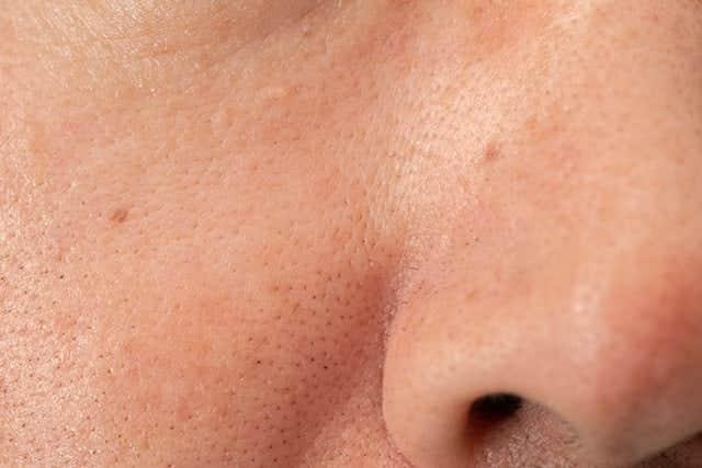 鼻の右側の黒ずみ