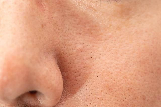 鼻の左側の毛穴