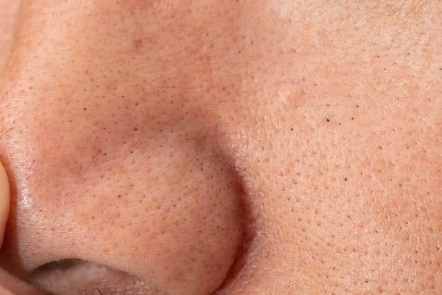 鼻の黒ずみ除去ビフォーアフター!2週間でおじさんの黒い毛穴はどうなった?
