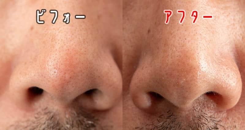 2週間後の鼻の毛穴 ビフォーアフター
