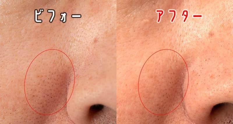 鼻の右側の黒毛穴 ビフォーアフター