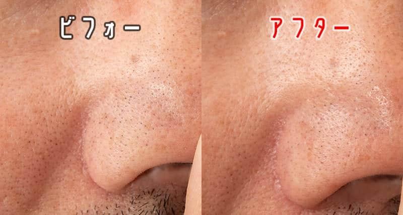 右の小鼻の黒毛穴 ビフォーアフター