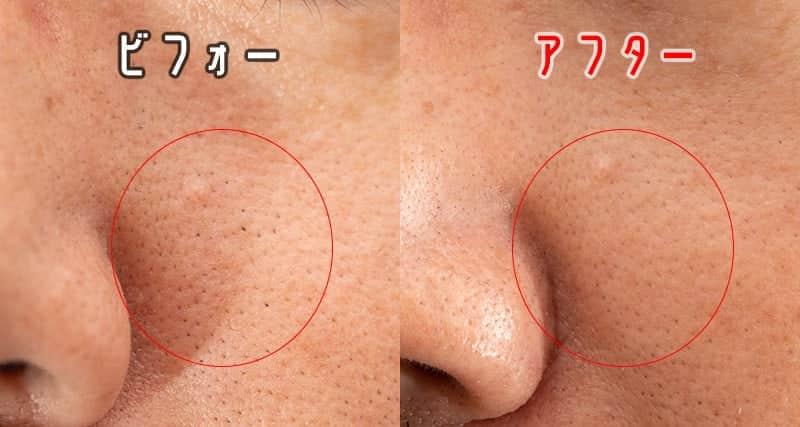 鼻の左側の毛穴 ビフォーアフター