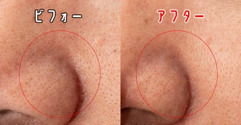 左の小鼻の黒毛穴 ビフォーアフター