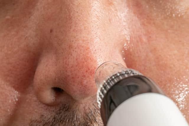 毛穴吸引器で鼻の黒ずみ吸ってみた!おじさんの黒い毛穴はどうなる?閲覧注意