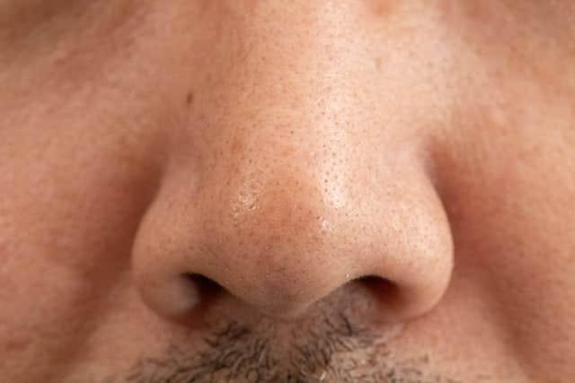 ビフォーの鼻の毛穴写真