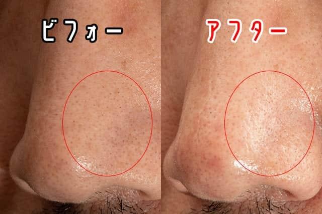 左の小鼻のビフォーアフター