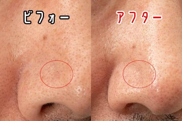 右小鼻のビフォーアフター