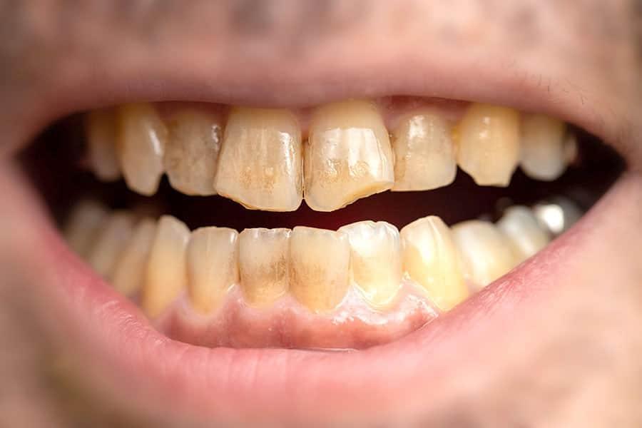 リステリンで歯が茶色くなった人におすすめのホワイトニングパウダーを2週間試した結果